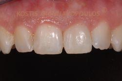 Μετά από τη λεύκανση του δυσχρωμικού δοντιού έχει αποκατασταθεί η χρωματική αρμονία του χαμόγελου