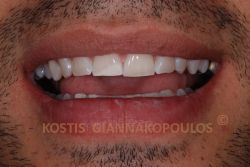Μετά τη λεύκανση των δοντιών η λευκή κηλίδα φαινεται λιγότερο. Σε περίπτωση που ο ασθενής επιθυμεί περαιτέρω βελτίωση, αυτό μπορεί να γίνει με τη μέθοδο bonding.