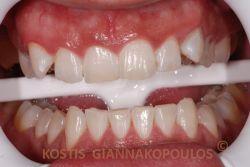 Μετά τη λεύκανση των δοντιών στο ιατρείο