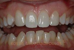Μετά τη θεραπεία - Όψεις σύνθετης ρητίνης (bonding) στους κυνόδοντες, χωρίς καθόλου τρόχισμα των δοντιών.