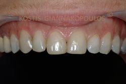 Bonding σε 6 δόντια για την αισθητική αποκατάσταση των δοντιών