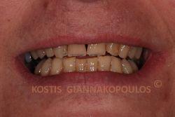 Αποτριβές και μικροκατάγματα δοντιών