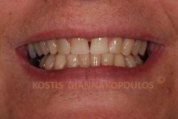 Όψεις σύνθετης ρητίνης (bonding) σε 6 δόντια