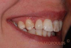 Τροποποίηση του νάνου πλάγιου τομέα με προσθήκη σύνθετης ρητίνης (μέθοδος Bonding) για να φαίνεται αισθητικά σωστός. Δεν έχει γίνει κανένα τρόχισμα του δοντιού.