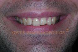 Αντιαισθητικό χαμόγελο λόγω σπασμένων και στραβών δοντιών
