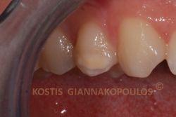 Ατελής ενασβεστίωση κατά την ανάπτυξη του δοντιού