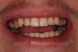 Αποκατάσταση του σπασμένου δοντιού με τη μέθοδο bonding