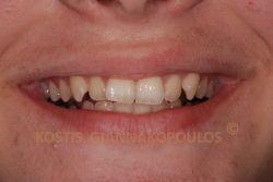 Ελαφρά στρεβλοφυία στα άνω πρόσθια δόντια