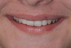 Bonding σε 6 δόντια μετά από ελάχιστο τρόχισμα των δοντιών