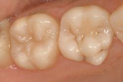 Αποκατάσταση της βλάβης χωρίς κανένα τρόχισμα υγιούς δοντιού