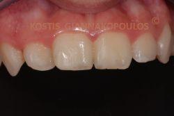 Αποκατάσταση με λευκό σφράγισμα. Ακολουθήθηκαν τεχνικές ώστε να γίνει ένα αόρατο σφράγισμα, χωρίς να καλυφθεί ολόκληρη η επιφάνεια του δοντιού.