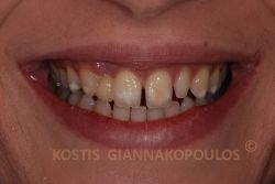 Κενά μεταξύ των δοντιών, λευκές κηλίδες, σκούρα δόντια και ένα δόντι που λείπει (με προσωρινό κολλημένο όπως κοιτάζουμε αριστερά)