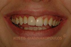 Το χαμόγελο της ασθενούς μετά την τοποθέτηση μιας όψης πορσελάνης