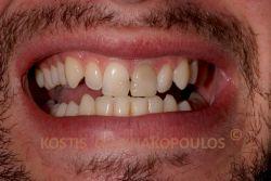 Σπασμένα δόντια με αντιαισθητικές αποκαταστάσεις. Ο ένας κεντρικός τομέας είναι δυσχωμικός λόγω απονεύρωσης.