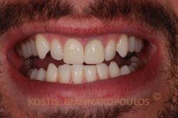 Μετά από λεύκανση των δοντιών και τοποθέτηση μιας ολοκεραμικής στεφάνης δεξιά (όπως κοιτάμε τη φωτογραφία) και μιας όψης πορσελάνης.