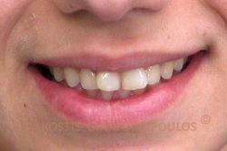 Στραβά δόντια στην άνω γνάθο