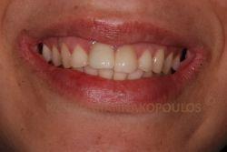 Αντιαισθητικό χαμόγελο με παλιές αποκαταστάσεις που δεν ταιριάζουν μεταξύ τους και στραβά δόντια
