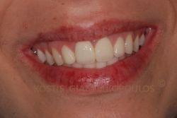 Το χαμόγελο αποκαταστάθηκε με όψεις πορσελάνης