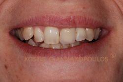 Δόντια με κακό σχήμα, δυσχρωμίες και ασυμμετρία