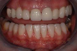 Μετά την αποκατάσταση των κάτω δοντιών με όψεις πορσελάνης.