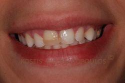 Σπασμένα δόντια με παλιές αποκαταστάσεις σύνθετης ρητίνης