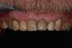 Αντιαισθητικά δόντια με παλιές στεφάνες, σφραγίσματα και δυσχρωμίες.
