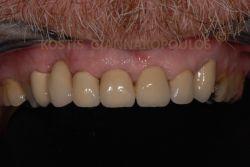 Τα δόντια μετά την τοποθέτηση 7 μεταλλοκεραμικών στεφανών.