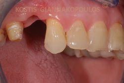 Δόντι που λείπει. Το οπισθιο δόντι έχει τροχιστεί για να τοποθετηθεί μια γέφυρα μεταλλοπορσελάνης