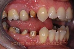 Τροχισμένα δόντια για μεταλλοκεραμικές στεφάνες