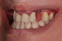 Δόντι που λείπει