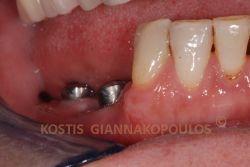 Τοποθέτηση οδοντικών εμφυτευμάτων στην δεξιά κατω περιοχή