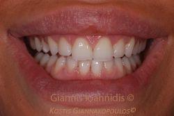 Υγιές χαμόγελο με σχετικά κοντά δόντια
