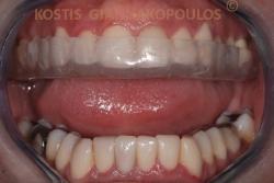 Σκληρός νάρθηκας από συνδυασμό θερμοπλαστικού και ακρυλικού υλικού. Ο συγκεκριμένος νάρθηκας έγινε γιατί η ασθενής τρίζει τα δόντια της το βράδυ (βρουξισμός).