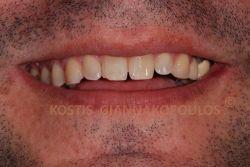 Χαμόγελο με μικροκατάγματα και δόντια διαφορετικού μεγέθους. Επίσης, υπάρχει ανάστροφη γραμμή γέλιου.