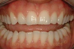 Δόντια με μικροκατάγματα και ελαφρά στρεβλοφυία