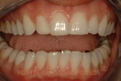 Τo mock up λειτουργεί σαν ένα είδος test drive. Σύνθετη ρητίνη τοποθετείται στα δόντια, όπου χρειάζεται προσθήκη και σημεία που πρέπει να τροχιστούν με αδαμαντινοπλαστική, βάφονται με μαύρο μαρκαδόρο.
