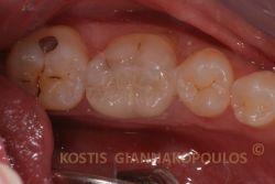 Αποκατάσταση με ένθετο πορσελάνης. Εναλλακτικά, θα έπρεπε να τοποθετηθεί στεφάνη (θήκη), που θα απαιτούσε, σε αυτή την περίπτωση, τρόχισμα του δοντιού που απέμεινε, απονεύρωση και ανασύσταση με άξονα.