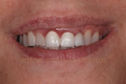 Old bridge that caused gingivitis in the anterior area and shade that does not match the natural teeth, We can also note wear on the natural teeth.