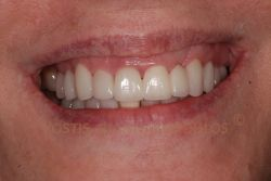 The smile was treated with a new zirconia bridge and porcelain veneers on the rest of the teeth