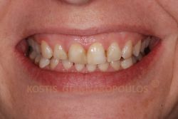 Unesthetic smile with old fillings, discolorations and tilted smile line