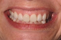 The smile of the patient after placing all ceramic crowns