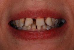 Patient with severely crooked teeth and large spaces