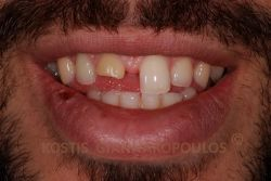 Fractured and discolored upper central incisor