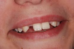 Patient with congenitally missing lateral incisors