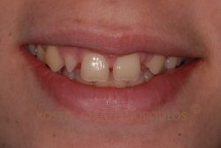 Complex case with diastemas and missing lateral incisor. The other lateral incisor is peg shaped.