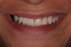 After tooth whitening and placing of an all ceramic bridge with wings and porcelain veneers.