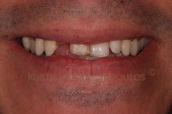 Fractured anterior teeth that were discolored due to a root canal