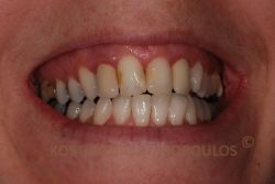 Unesthetic smile with two old metal ceramic crowns on the lateral incisors and old fillings on the central incisors
