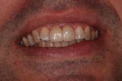 The smile after replacing the old bridge with an all ceramic, zirconium bridge.