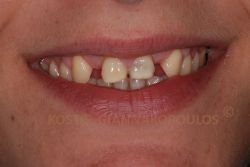 Congenitally missing lateral incisors and bad looking centrals